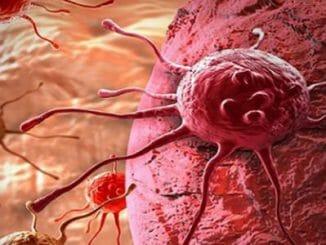 41fc10b1c75aeb015704529a50ed2daa 326x245 - Lékaři přišli na způsob, jak vyhladovět rakovinu