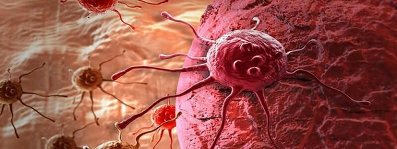 41fc10b1c75aeb015704529a50ed2daa - Lékaři přišli na způsob, jak vyhladovět rakovinu
