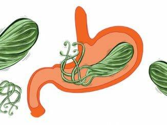 ba4a55c23acda85c3a47ca8edc680db0 326x245 - Helicobacter pylori vyvolává žaludeční vředy