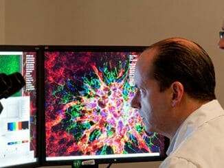 a9c7c7ce83c06c509e906381283c7a25 326x245 - Test DNA odhalí vaše skryté vlohy