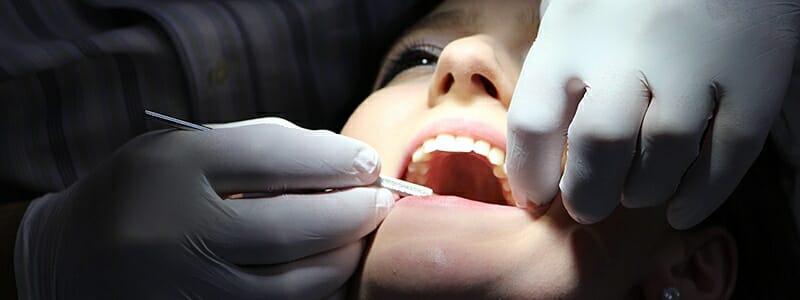 a4a2e4a9d9fc7def9dc05c463cb0fcb7 - Zubní kaz: Příčiny mohou být v psychice