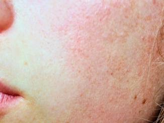 Sluneční alergie