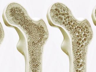 Kmenové buňky napomáhají růstu kostí a chrupavek. Na snímku čtyři stádia osteoporózy.