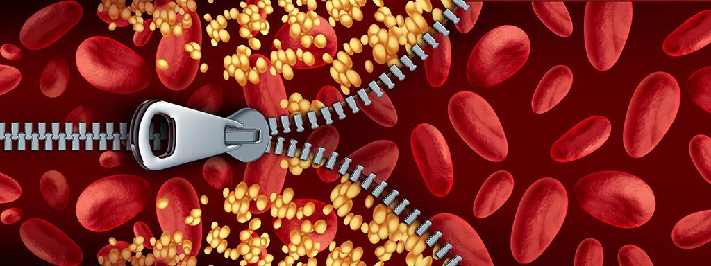 Jak snížit cholesterol (LDL vs. HDL) přírodně a bez léků.