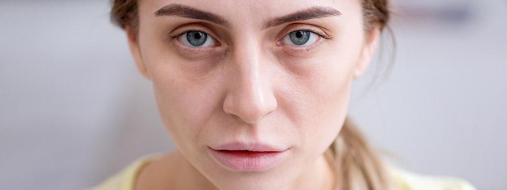 Nedostatek vitamínů a minerálů vyčtete z tváře.