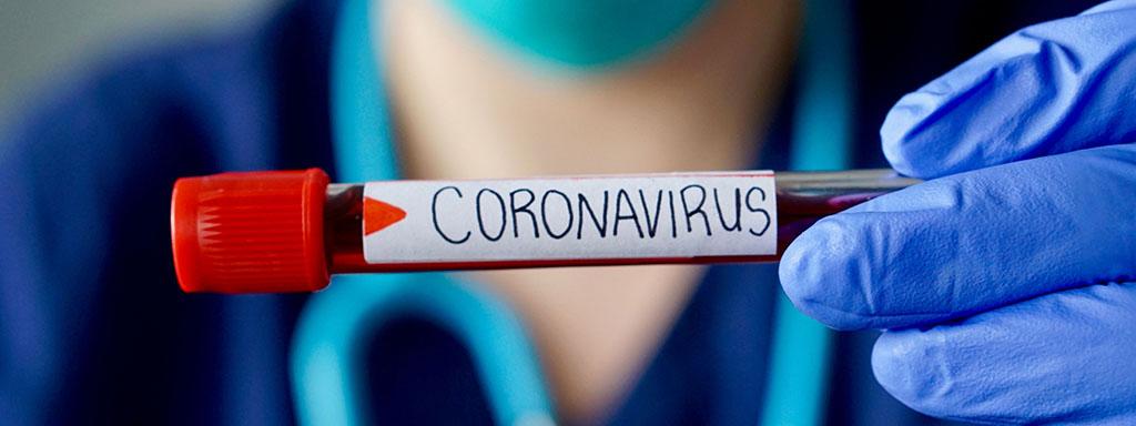 Koronavirus si ve světě bere za oběti hlavně muže.