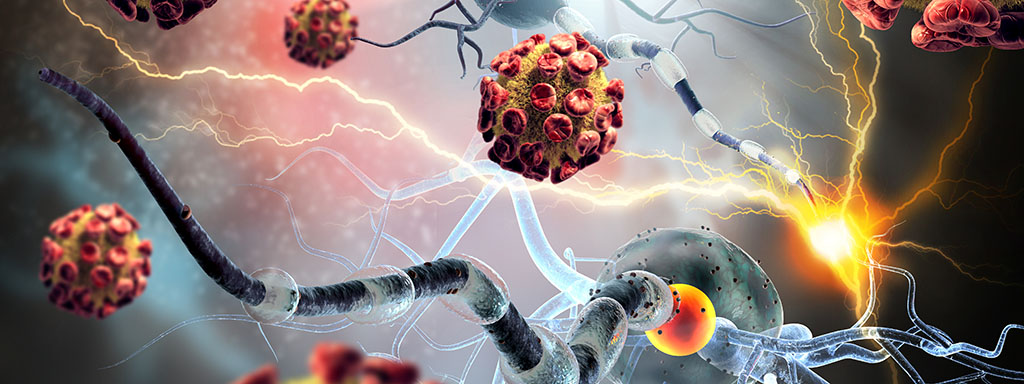 Autoimunitní onemocnění, jejich příčiny a léčba.
