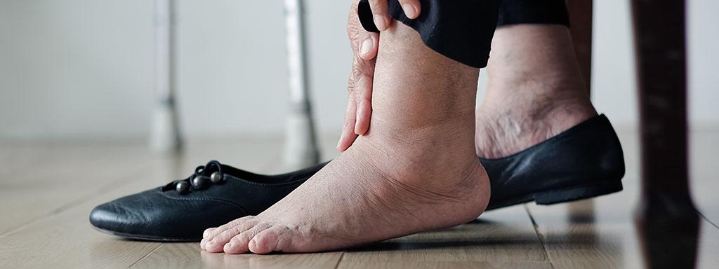 Otoky kotníků mohou být příznakem vážnější nemoci.